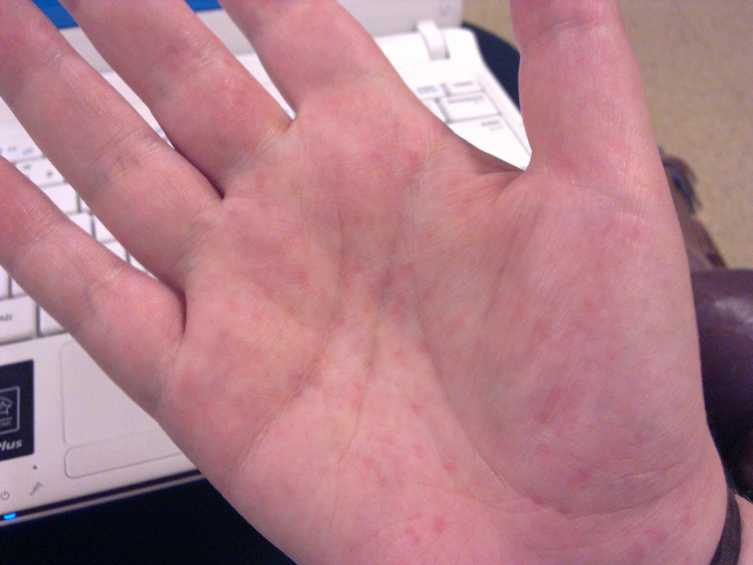 røde knopper på hænderne